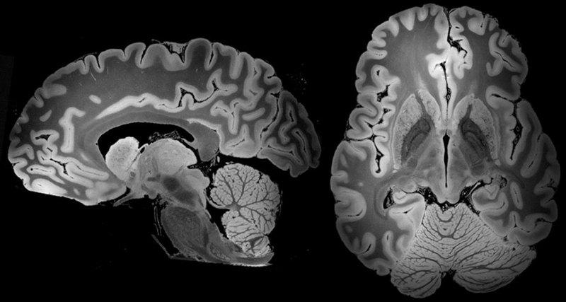 детальне зображення мозку