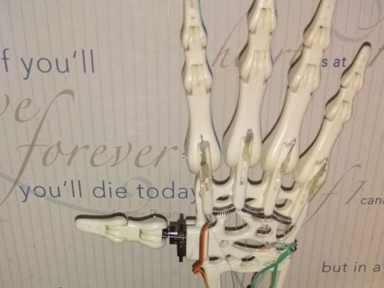 електронна рука