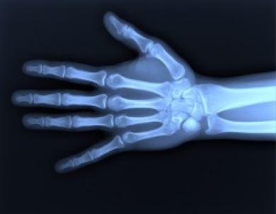 рентгенівскі промені.